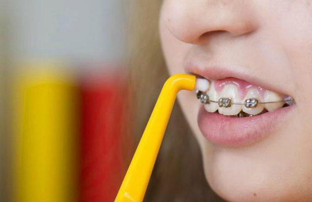 монопучковая зубная щётка для брекетов