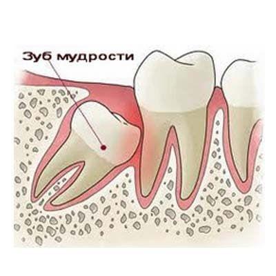 удалить зуб мудрости