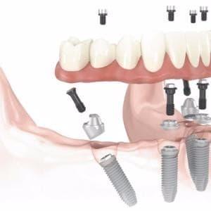 Все для протезирования зубов в николаеве